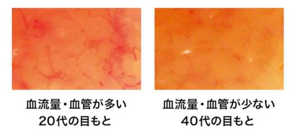 目もとの毛細血管の年代別変化