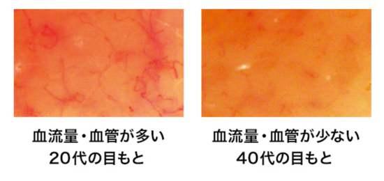 目もとの毛細血管の老化